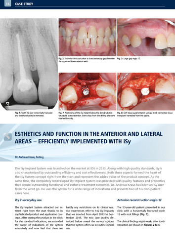 Esthetics and function in the anterior and lateral areas – efficiently implemented with iSy