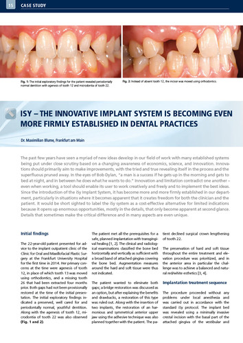 iSy – The innovative implant system is becoming even more firmly established in dental practices