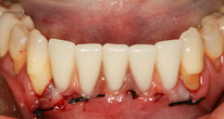 Cost-effective immediate restoration in the anterior region of the mandible (iSy® by CAMLOG)